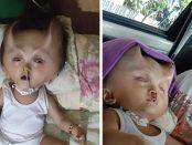 Băiatul cu coarne de diavol născut cu o afecțiune congenitală gravă