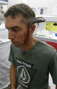 Bărbatul a fost înjunghiat cu un cuțit în cap