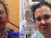 Mama eroină care și-a salvat fiul sărind în fața săgeții