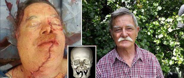 Un bunic și-a tăiat accidental jumătate din față și limba