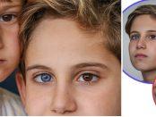Doi frați născuți cu o anomalie rară a ochilor numită heterocromie