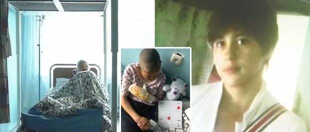 O adolescentă a suferit arsuri groaznice după ce tatăl ei i-a dat foc