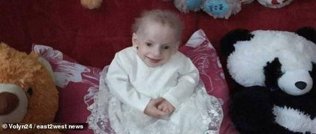 O fetiță de OPT ANI A MURIT DE BĂTRÂNEȚE fiind cea mai tânără persoană moartă de PROGERIA