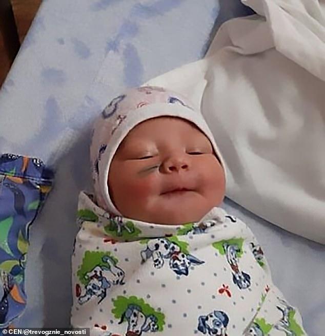 O nou-născută din Rusia a fost lăsată cu o cicatrice pe obraz după ce medicii au făcut o operație de cezariană mamei sale