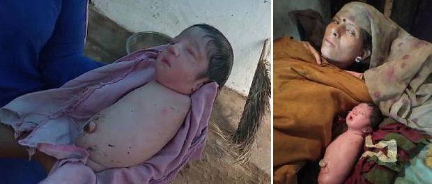 Fetița născută fără brațe și picioare datorită unei afecțiuni genetice rare