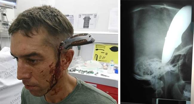 Bărbat înjunghiat în cap în Africa de Sud