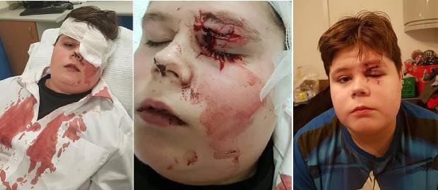Băiat bătut la școală care aproape a orbit după ce i-au fost sparți ochelarii