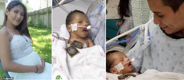 Bebelușul scos din pântecele mamei sale care a fost ucisă, luptă pentru viață