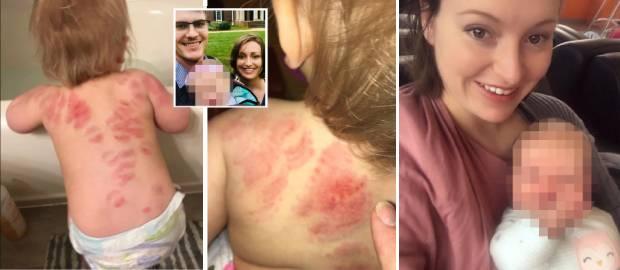 O fetița a fost mușcată în timp ce era îngrijită la creșă