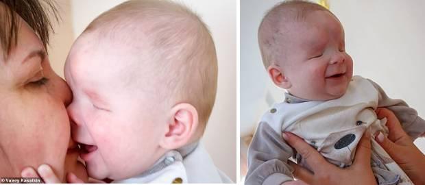 Bebelușul născut fără ochi a primit cadou o familie iubitoare de Crăciun