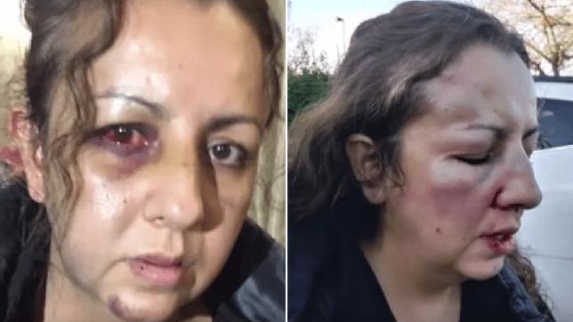 Mamă bătută măr la școală de agresoarea fiicei sale