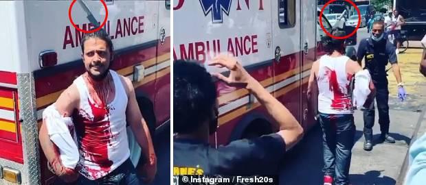Bărbat cu un cuțit înfipt în cap după ce a încercat să apere o femeie jefuită