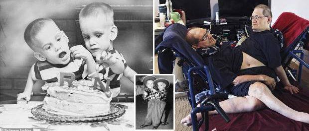 Au murit cei mai în vârstă gemeni siamezi din lume la vârsta de 68 de ani