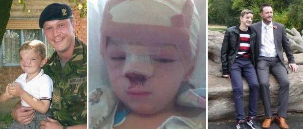 Un soldat britanic a schimbat viața unui băiat bosniac care se născuse cu o deformație facială