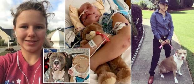 Adolescentă în comă și ventilată după ce a fost atacată de doi pitbulli