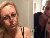 Snopită în bătaie de partenerul ei violent după ce a ieșit cu prietenii